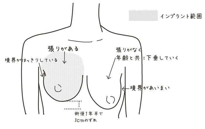 乳がん 再建 インプラント